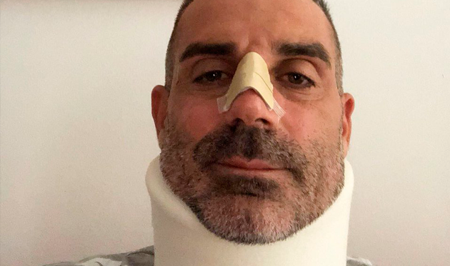 Соррентино продемонстрировал, как онвыглядит после столкновения сРоналду