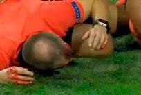 В матче Штурм — АЕК Ларнака лайнсмену разбили голову бутылкой