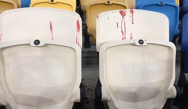 Во время матча Динамо Киев — Александрия ультрас киевлян напали на болельщиков